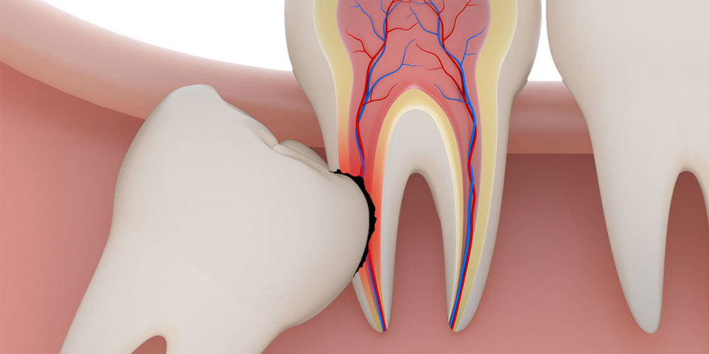 vancouver Wisdom Tooth Removal