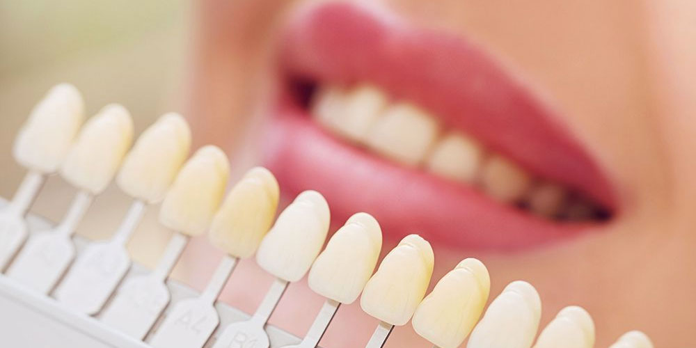 cometic dentistry vancouver