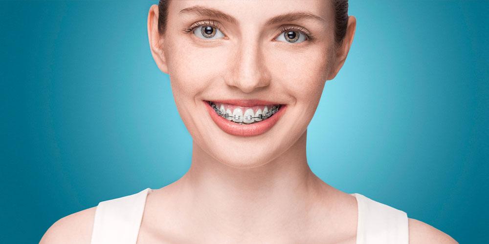 orthodontics vancouver