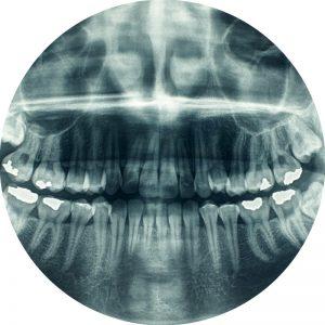 dentist equipment panorama x ray
