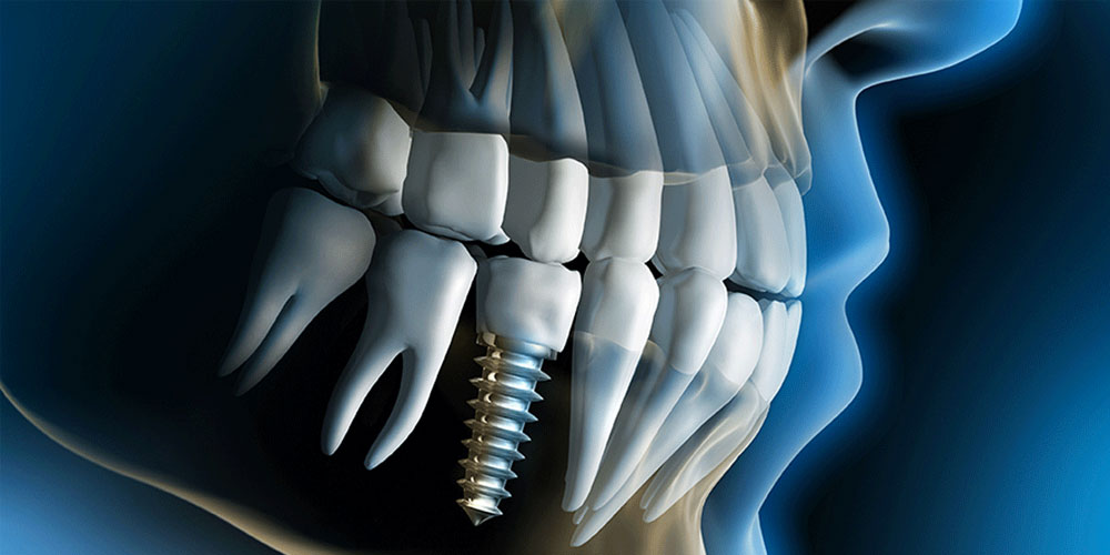 vancouver dental implants